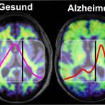 Im Gehirn von Menschen mit Alzheimer kommt es zu Protein-Ablagerungen. Gesunde und krankhafte Amyloid-Proteine absorbieren Infrarotlicht unterschiedlich und können mit bildgebenden Verfahren sichtbar gemacht werden (rechts). Foto: K. Gerwert, A. Nabers/RUB.