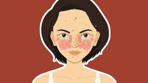 Typisch für die Krankheit ist die Schmetterlingsröte im Gesicht. Illustration: AdobeStock – blueringmedia