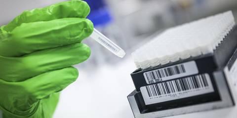Biontech Ergebnisse Zu Impfstoffkandidat Ermutigend