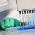 Vier Wormser sind positiv auf das Coronavirus getestet worden. Auch in der VG Wonnegau gibt es erstmals wieder einen Fall.  Archivfoto: Sven Hoppe